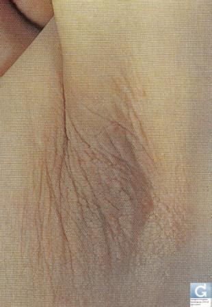 bukol sa a sanhi ng breast kanser picture 7