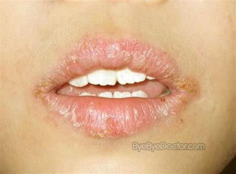 cancer on lips picture 5