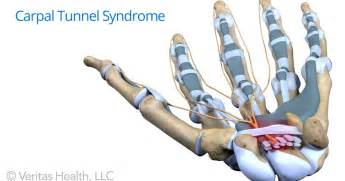 carpal tunnel pain relief picture 10