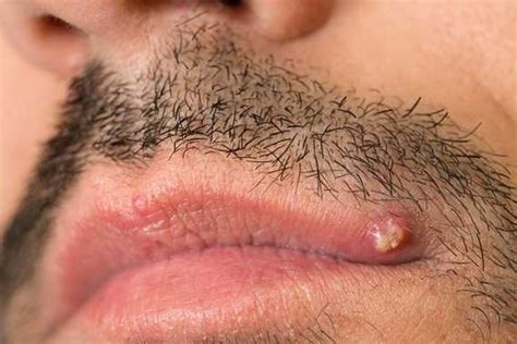 what causes reoccuring pimpes of the upper lip picture 14