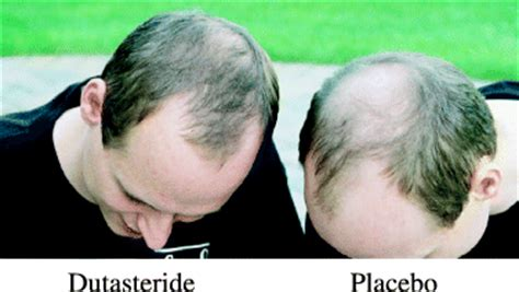 avodart hair loss results 2006 picture 6