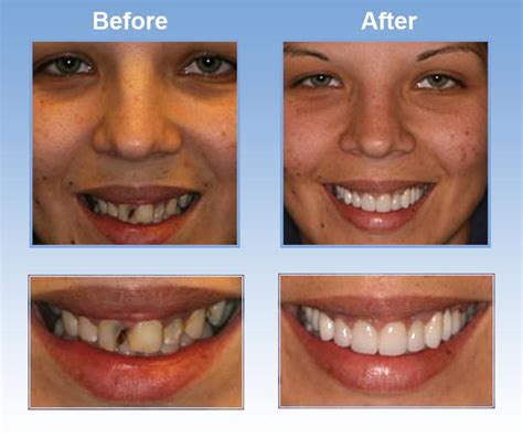 tooth whiten san francisco picture 17