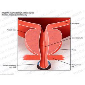 tr prostate picture 5