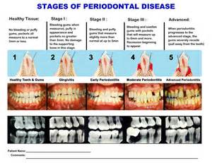 stages of bacterial infection picture 3