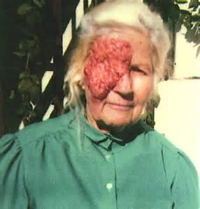 black paste mole removal picture 6