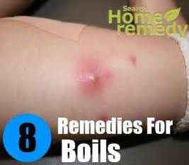 home remedies for boils picture 13