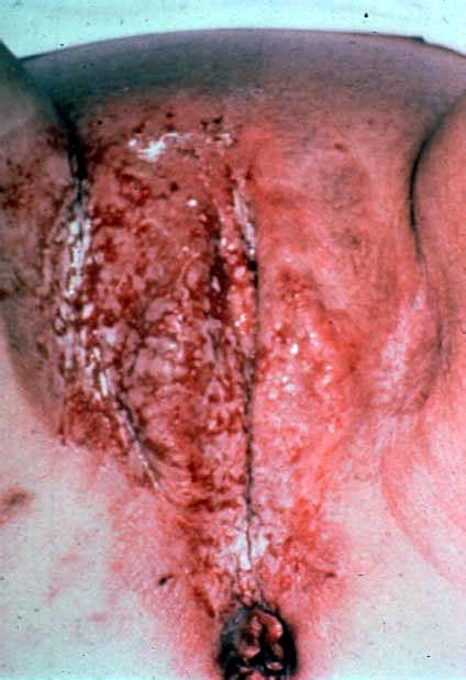 vaginal skin disease picture 1