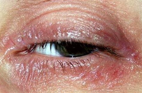 flaky skin and rosacea picture 1