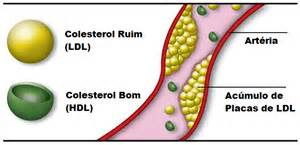 Ldl cholesterol picture 9
