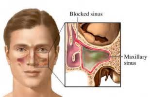 do sinus infections heal on their own picture 10