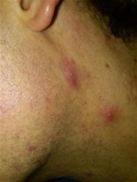 acne neck picture 3