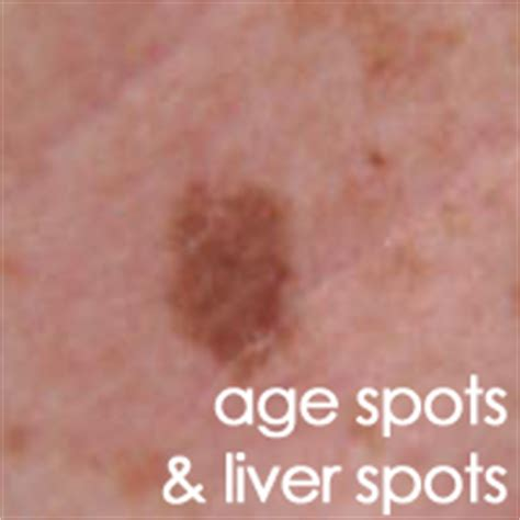 liver spots on penis picture 5