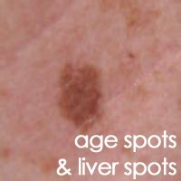 what do liver spots look like picture 10