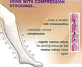 cream for varicose veins available in mercury drug picture 13