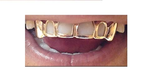 gold teeth mold kits picture 2