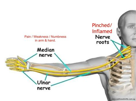 thyroid and muscle arm aches solution picture 14