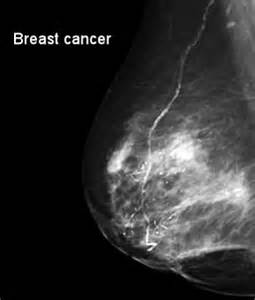 what does prostate ca what does breast cancer picture 13