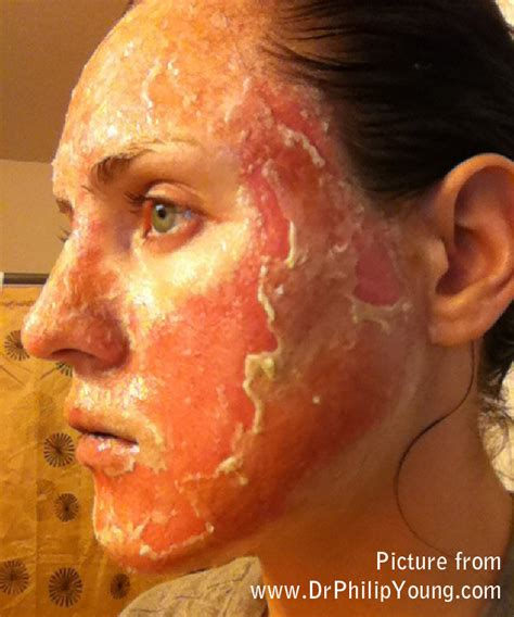 cost of co2 laser for acne scars picture 3