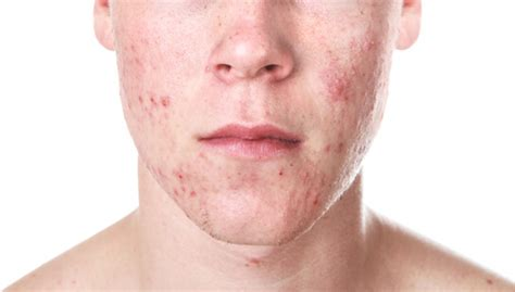acne vulgaris picture 6