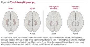 frontotemporal dementia blood flow picture 13