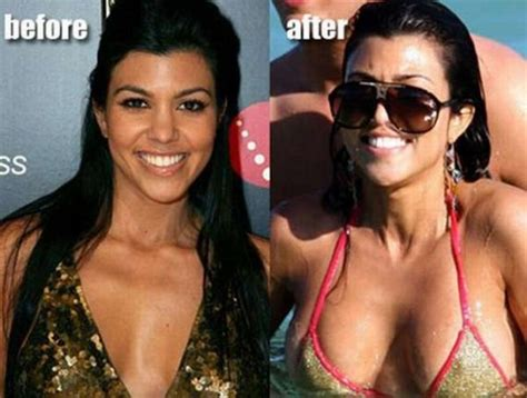 actresses and breast augmentation jobs picture 17