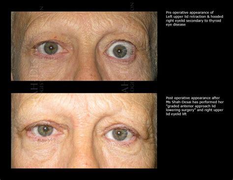 thyroid eye disease treatment picture 1