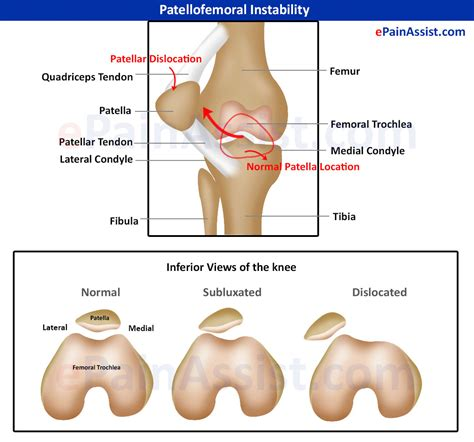 ankle joint recurrent subluxation dislocation picture 7