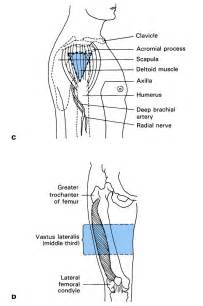 deltoid muscle injections picture 9
