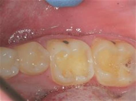 acid reflux in infants teeth picture 5