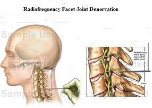 lumbar facet joint diseases picture 17
