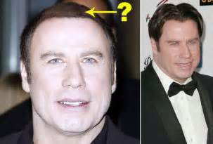 John travolta hair replacement picture 2