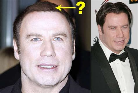 John travolta hair replacement picture 5