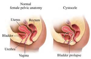 symptoms of a fallen bladder in a female picture 5