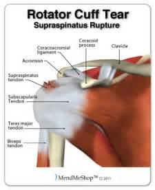 diagnose shoulder muscle tear picture 21