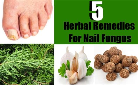 herbal supplement for fungus picture 7