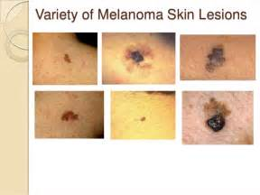 stage 1 skin cancer picture 17