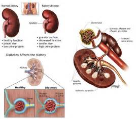 diet for diabetic in renal failure picture 3
