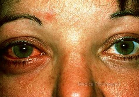 can herpes cause graves disease picture 1