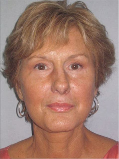 liposuction for older women picture 3