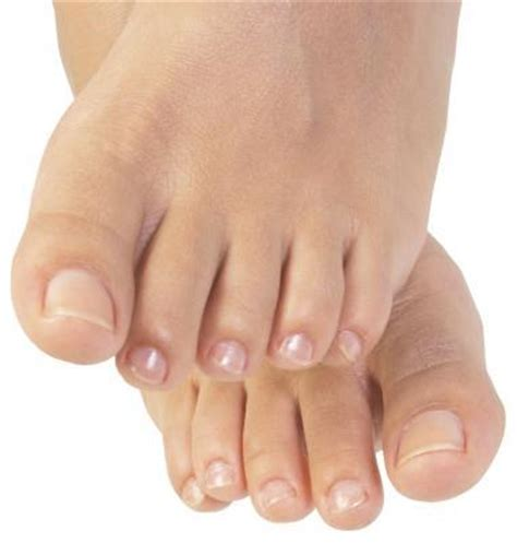 vitamins for nail fungus picture 1