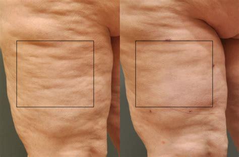 cellulite pic picture 1