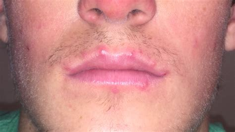 what causes reoccuring pimpes of the upper lip picture 9