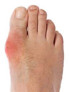 foot problems sore toe joint picture 19