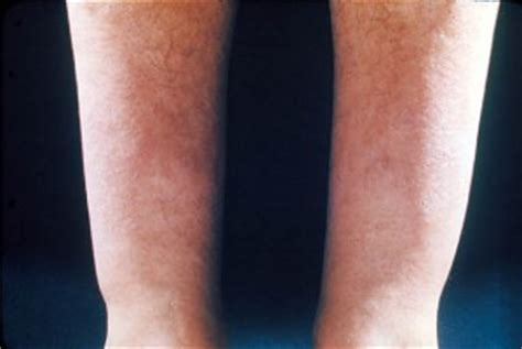 infiltrative skin disorders picture 13