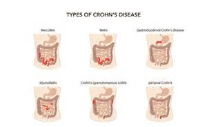types of intestinal colitis picture 15