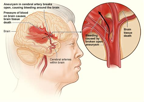 aneurysm high blood pressure picture 14