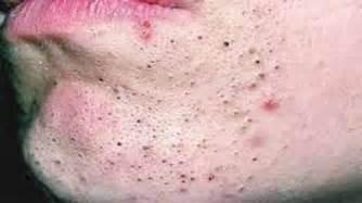 homemade skin cream picture 11