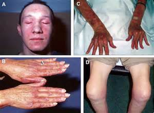 muscle disease picture 1