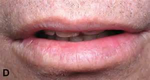 what does lip cancer look like picture 13