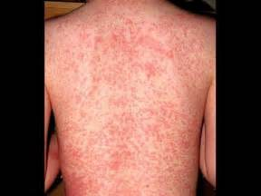 show me pictures of skin rashes picture 6